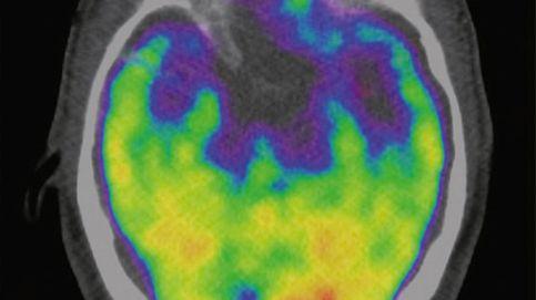 La ciencia lo confirma, el estrés mata