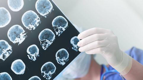 La estrecha relación entre el Virus del herpes y el alzhéimer, segun la ciencia