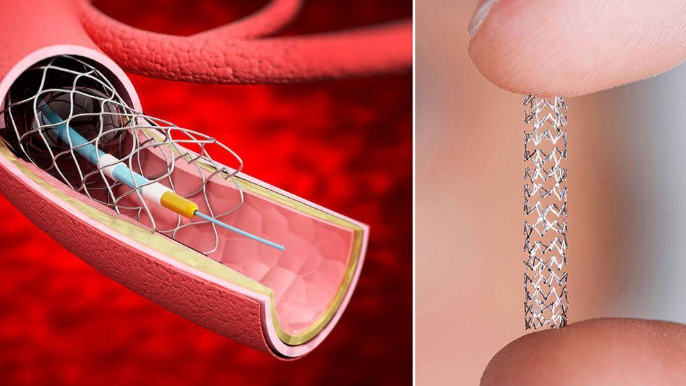 El reino del muelle en el corazón: el 'stent' es el implante del que más se abusa en España