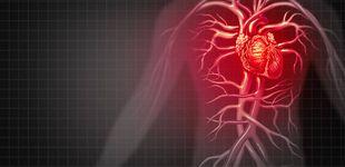 Post de Las causas ocultas que pueden provocar que te dé un infarto