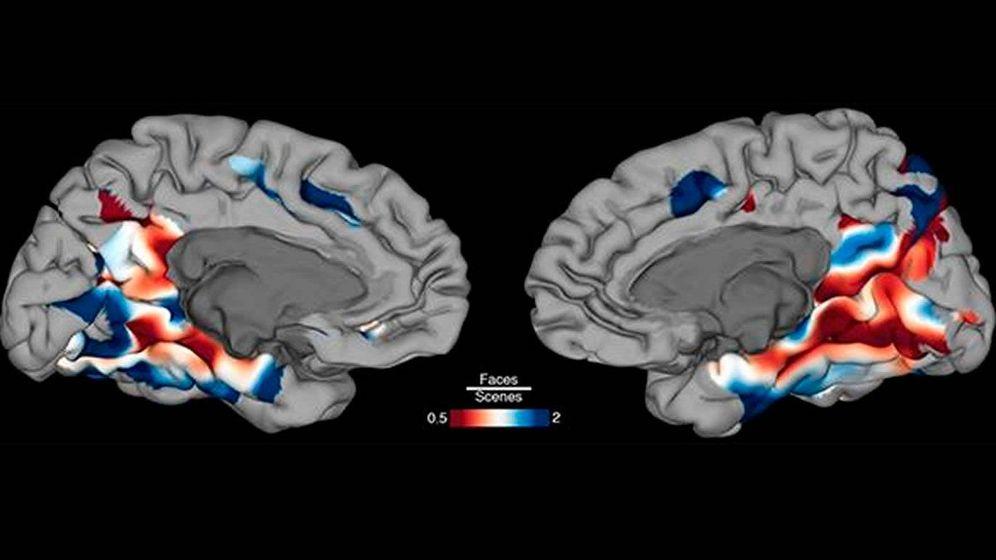Foto: Imagen de una mapa de la superficie del cerebro que muestra las regiones que se activan preferentemente durante la identificación de la cara (azul) y la escena (rojo). Foto: Oscar Woolnough