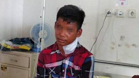 Un joven indonesio es apuñalado en el cuello por un pez aguja (y vive para contarlo)