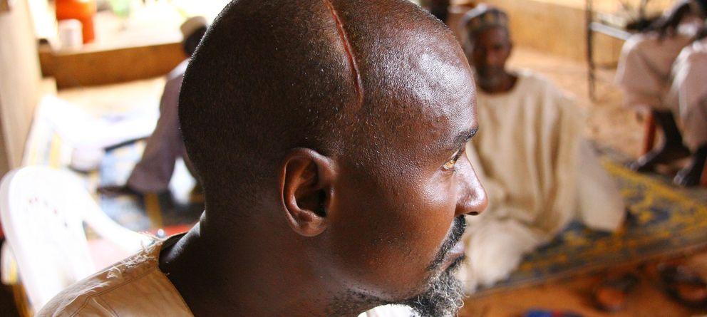 Foto: Said Bouba, el único miembro de su familia que sobrevivió a una emboscada de los Antibalaka en Boda. (Trinidad Deiros)