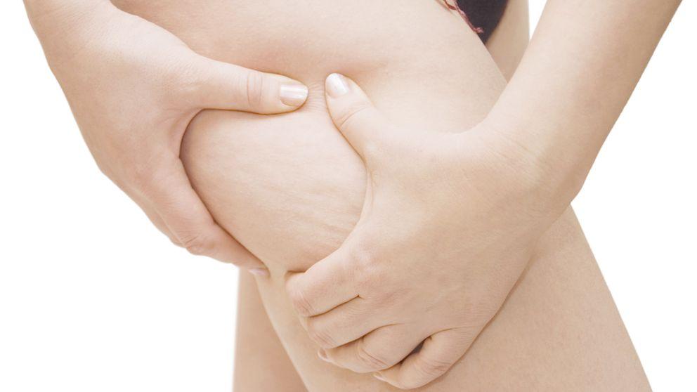 La dieta para adelgazar, acabar con la retención de líquidos y eliminar celulitis