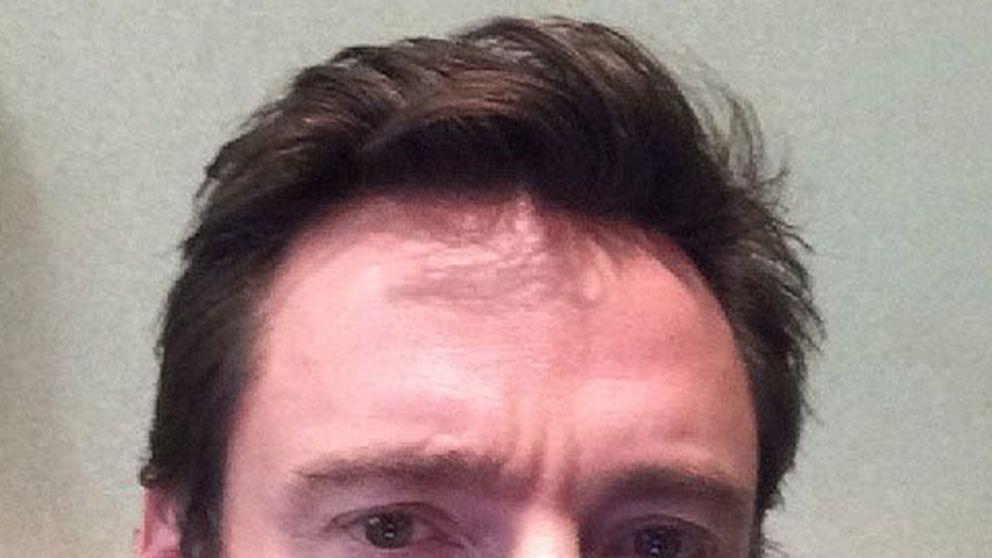 Jackman anuncia en su perfil de Instagram que padece cáncer de piel