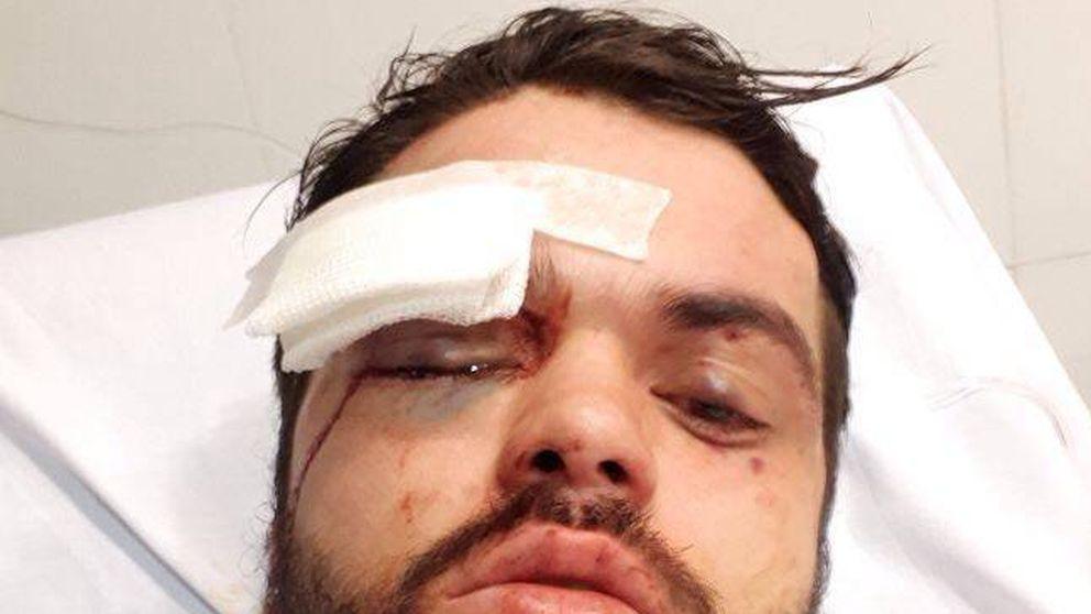 Brutal agresión homófoba a un jugador argentino de rugby