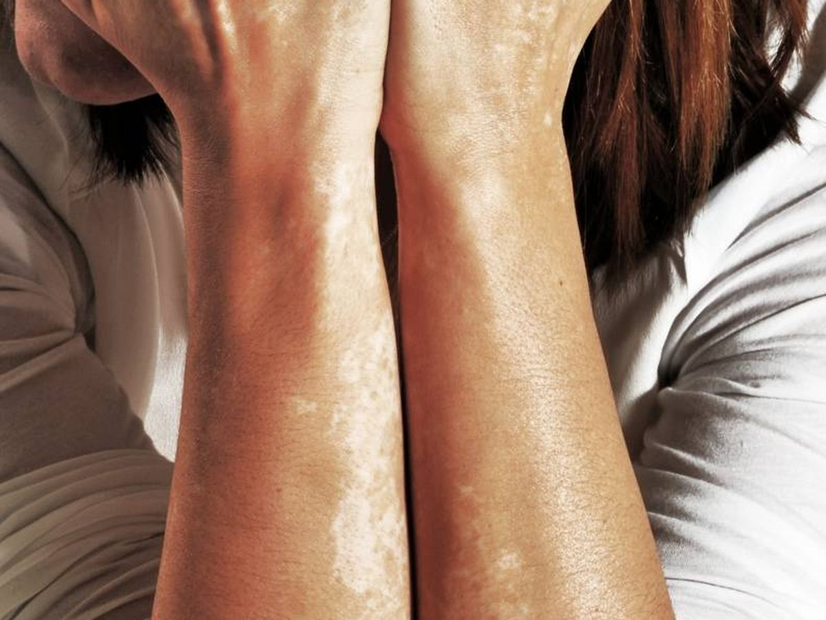 Foto: Belén muestra sus brazos.