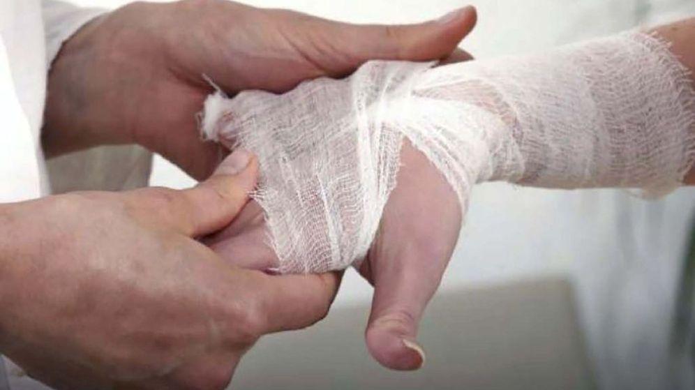 Foto: Las palmas de las manos y los dedos son dos partes fundamentales para detectar artritis reumatoide. (EFE)