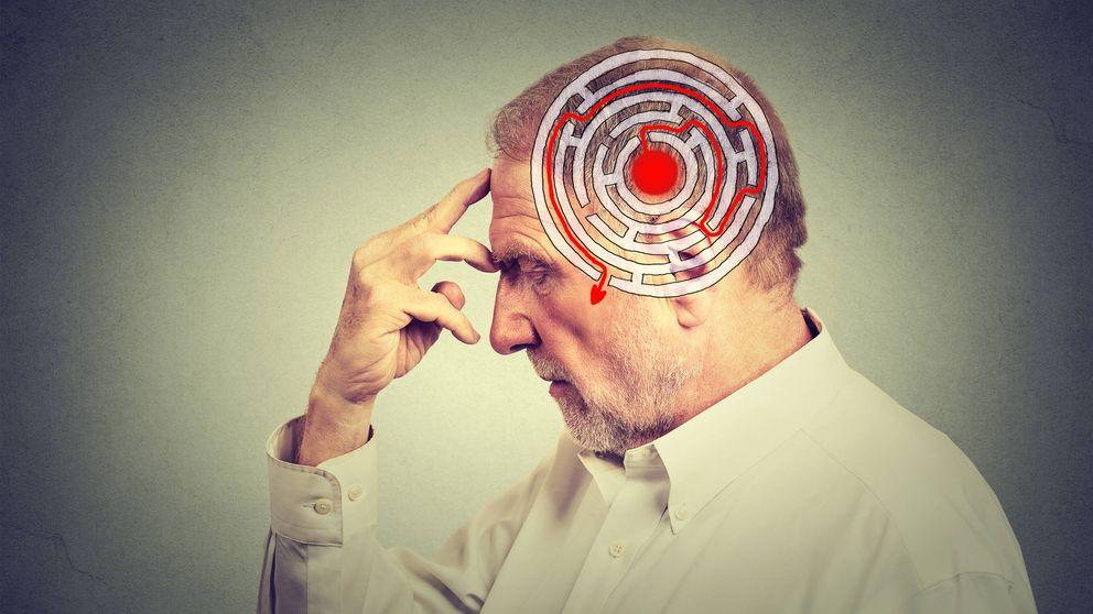 Observan por primera cómo se estructura el Alzheimer en el cerebro