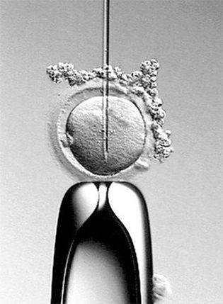 Foto: El IVI investiga obtener ovocitos y espermatozoides de células madre