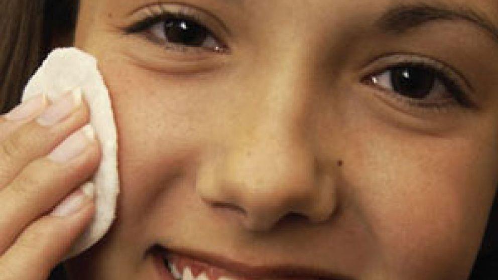 El acné, un problema psicológico