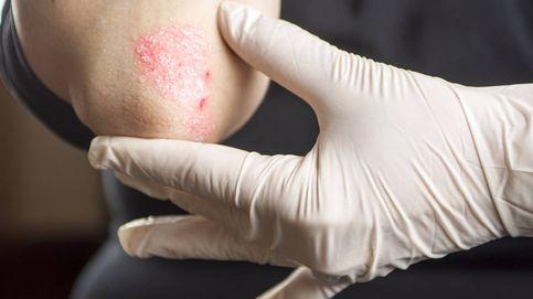 Causas, síntomas y tratamiento para mejorar la psoriasis