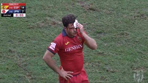 Veía todo teñido de sangre. Los entresijos de la jugada más viral del rugby español
