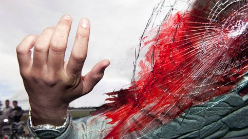 Esto es lo que deberías hacer en caso de sufrir una grave hemorragia