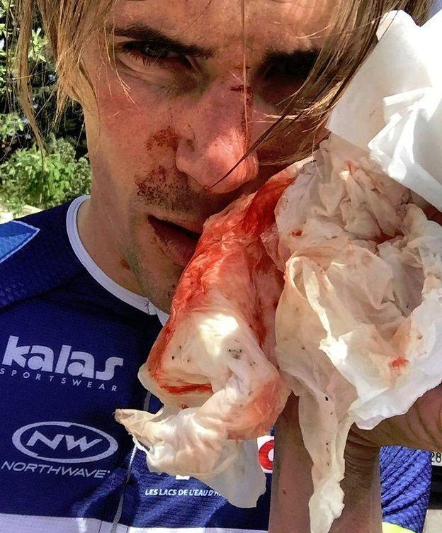 Foto: Yoann Offredo tras ser agredido este lunes. (Facebook: yoann.offredo)