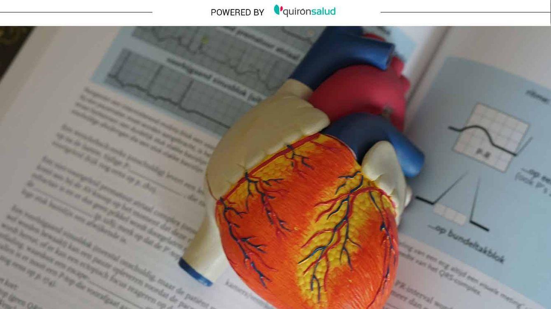¿Angina de pecho o infarto de miocardio? Estos son los síntomas y diferencias