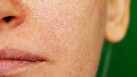 La difícil tarea de eliminar las manchas de la piel: 3 consejos del dermatólogo