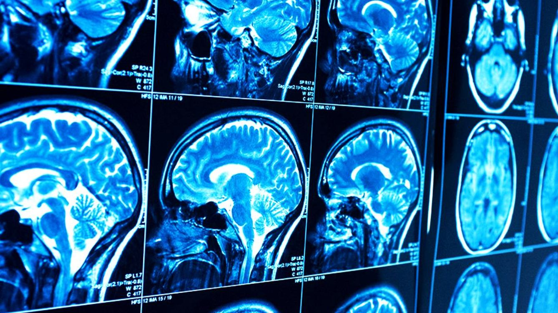 Foto: El meduloblastoma ataca al cerebro de lo más pequeños
