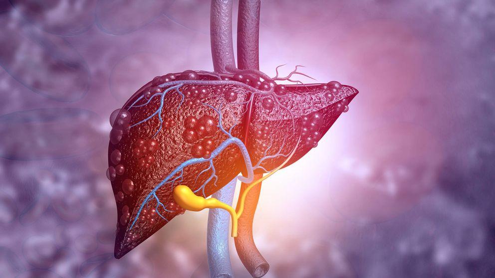 Esto es lo que le sucede a tu hígado cuando bebes alcohol