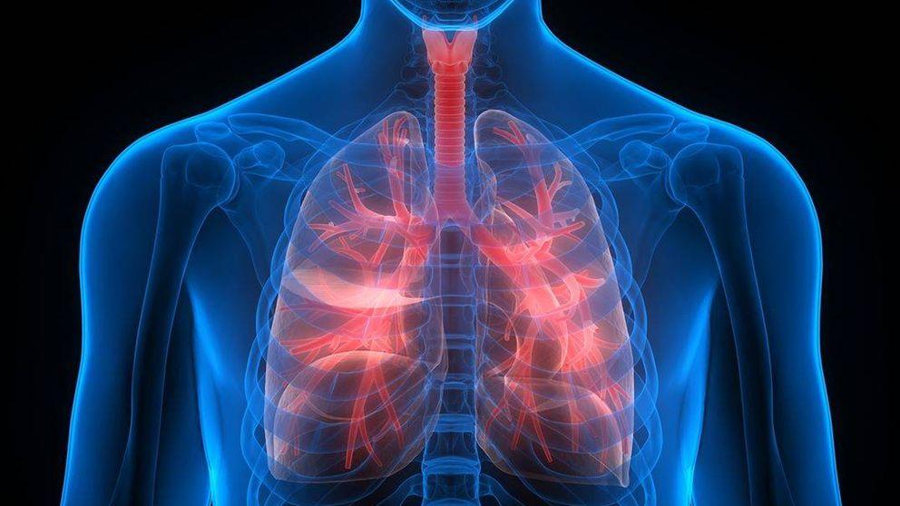 ¿Es el cáncer de pulmón uno de los tumores más agresivos?