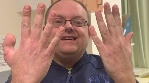 Pierde un pulgar y el hospital se lo sustituye por el dedo gordo del pie