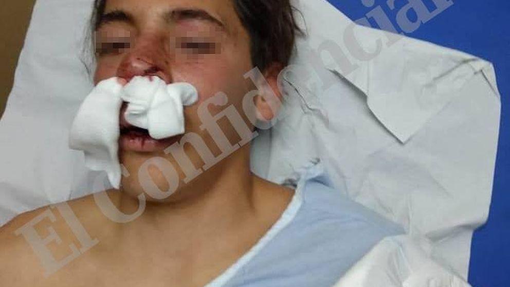 Expedientan a varios policías nacionales en Melilla por la brutal paliza a un menor