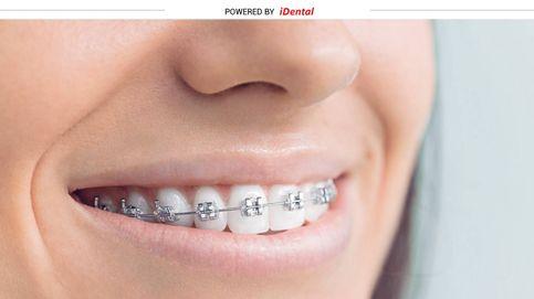 ¿Necesitas 'brackets'? Descubre el tipo de ortodoncia que más te conviene