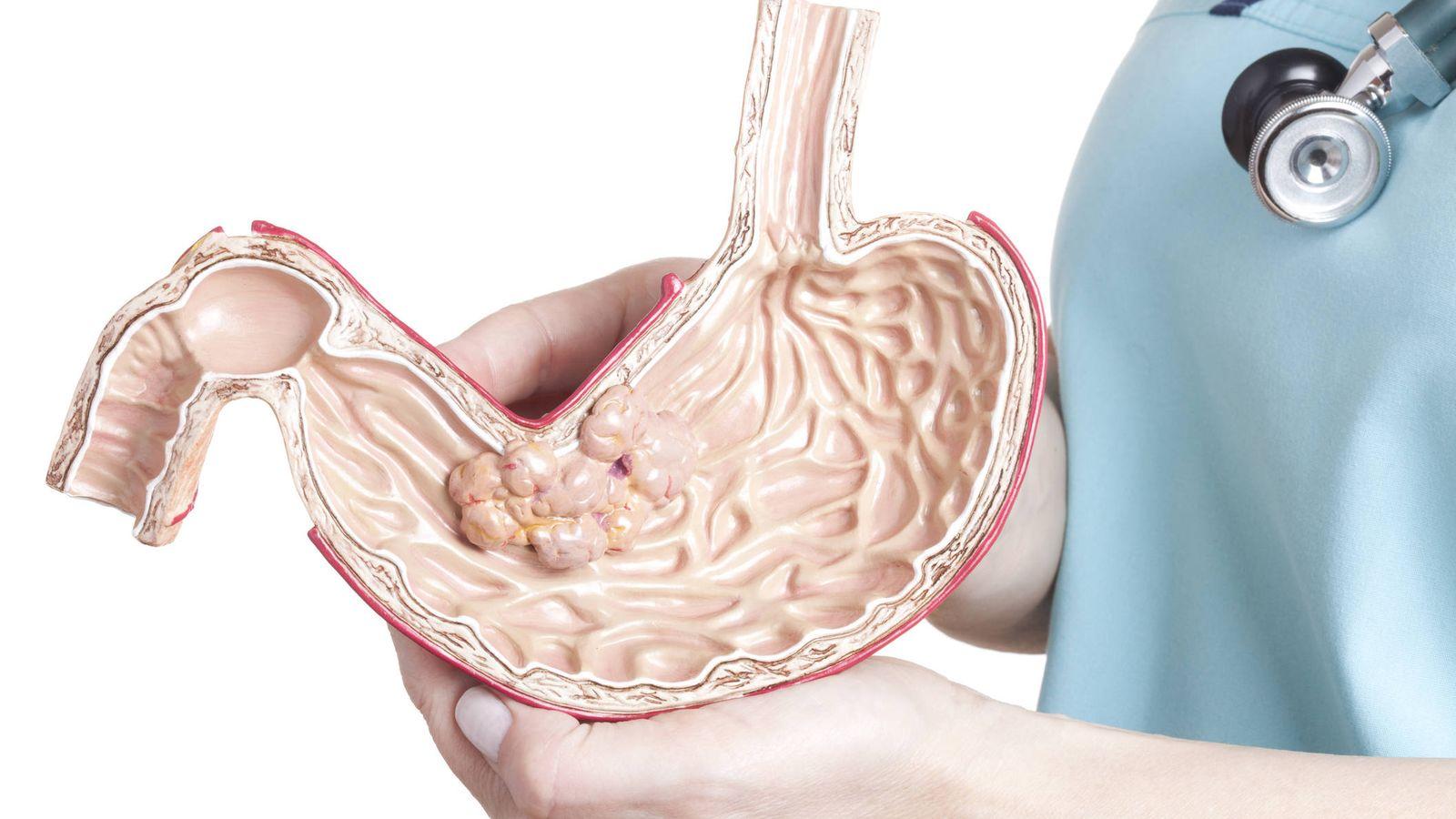 bulto en la parte superior del estomago