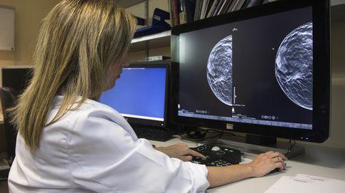 Detectan una proteína para evitar metástasis en el cáncer de mama