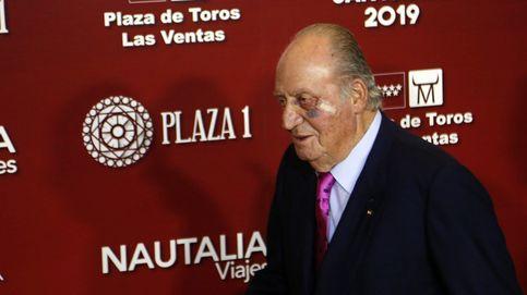 El ojo morado del rey Juan Carlos y las infundadas alarmas sobre su salud