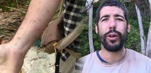 Post de Los mosquitos causan estragos en los participantes de 'La Isla'