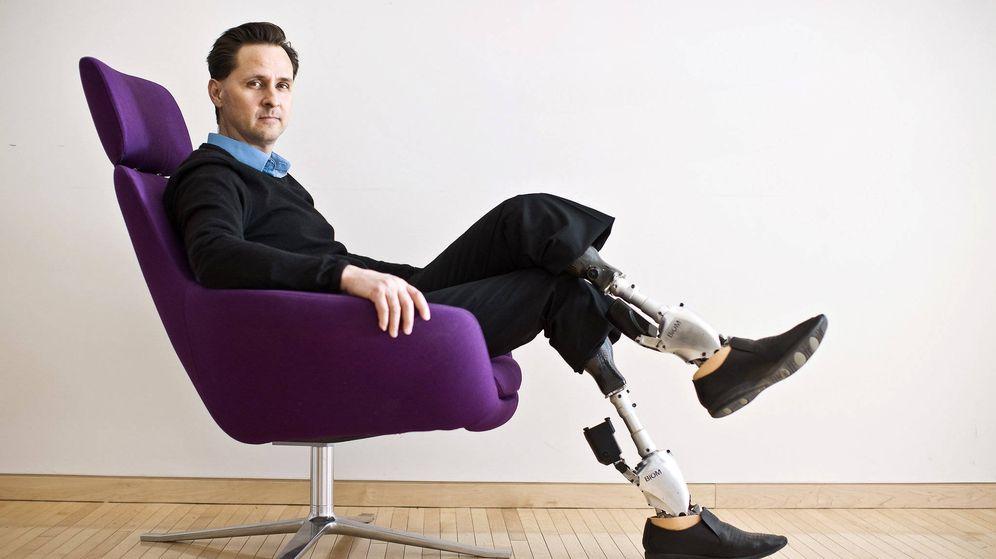 Piernas inteligentes y manos impresas: las prótesis más avanzadas ...