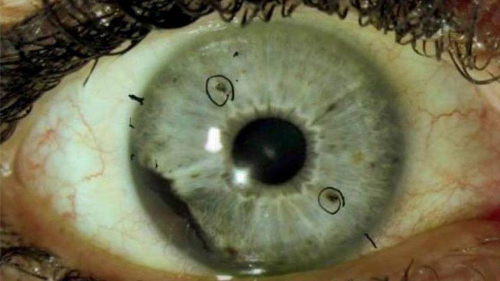 Los treinta misteriosos casos de cáncer de ojo que los médicos no logran explicar