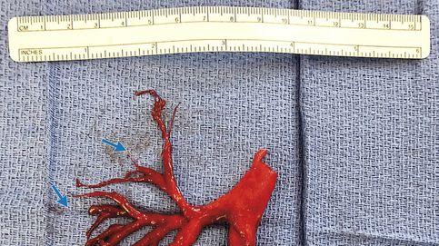 Un hombre expulsa un coágulo de sangre con forma de árbol bronquial al toser