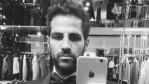 Cesc Fábregas ya luce su nueva nariz