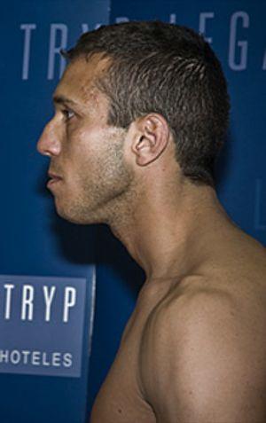 Navascués no peleará por el título tras dar positivo por un adelgazante