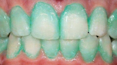 Una pasta de dientes que resalta la placa y previene ataques al corazón