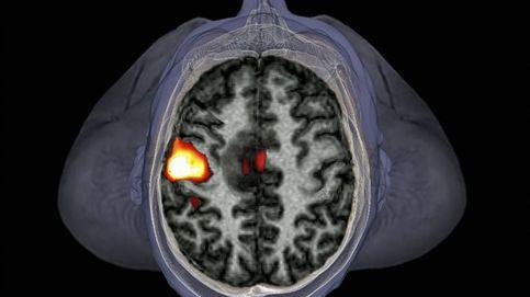 100.000 escáneres del cerebro para derrotar a las enfermedades mentales