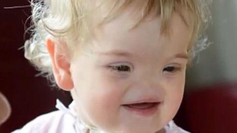 La niña sin nariz que tendrá un rostro completo gracias a las impresoras 3D