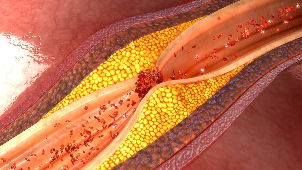 Descubren una alternativa a las estatinas que no produce dolor muscular