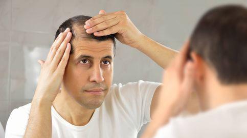 No al agua caliente: 5 maneras efectivas de evitar la caída del pelo