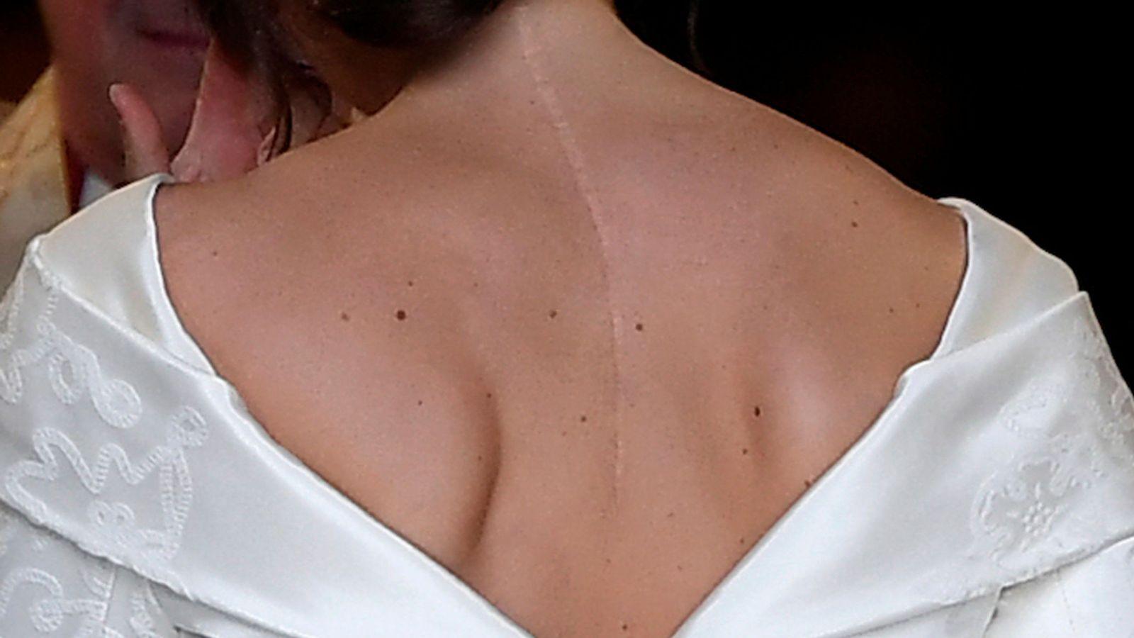 Foto: Detalle de la cicatriz de Eugenia. (Reuters)