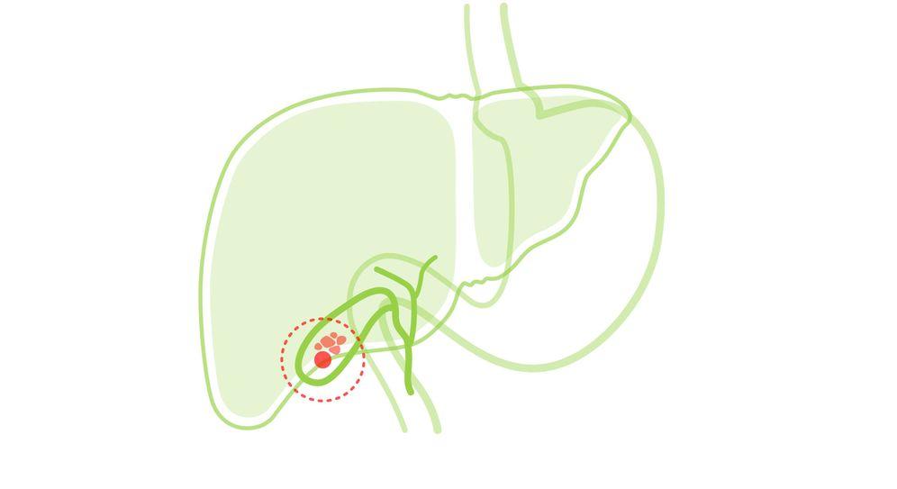 dieta para calculos biliares embarazo