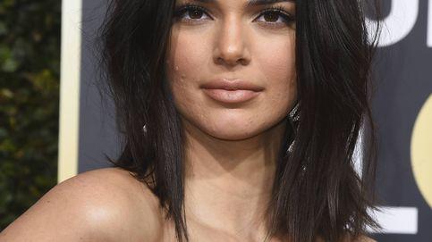 Los trucos de Kendall Jenner para combatir el acné adulto