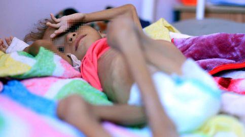 Muere la niña que puso rostro a la guerra, las miserias y el hambre de Yemen