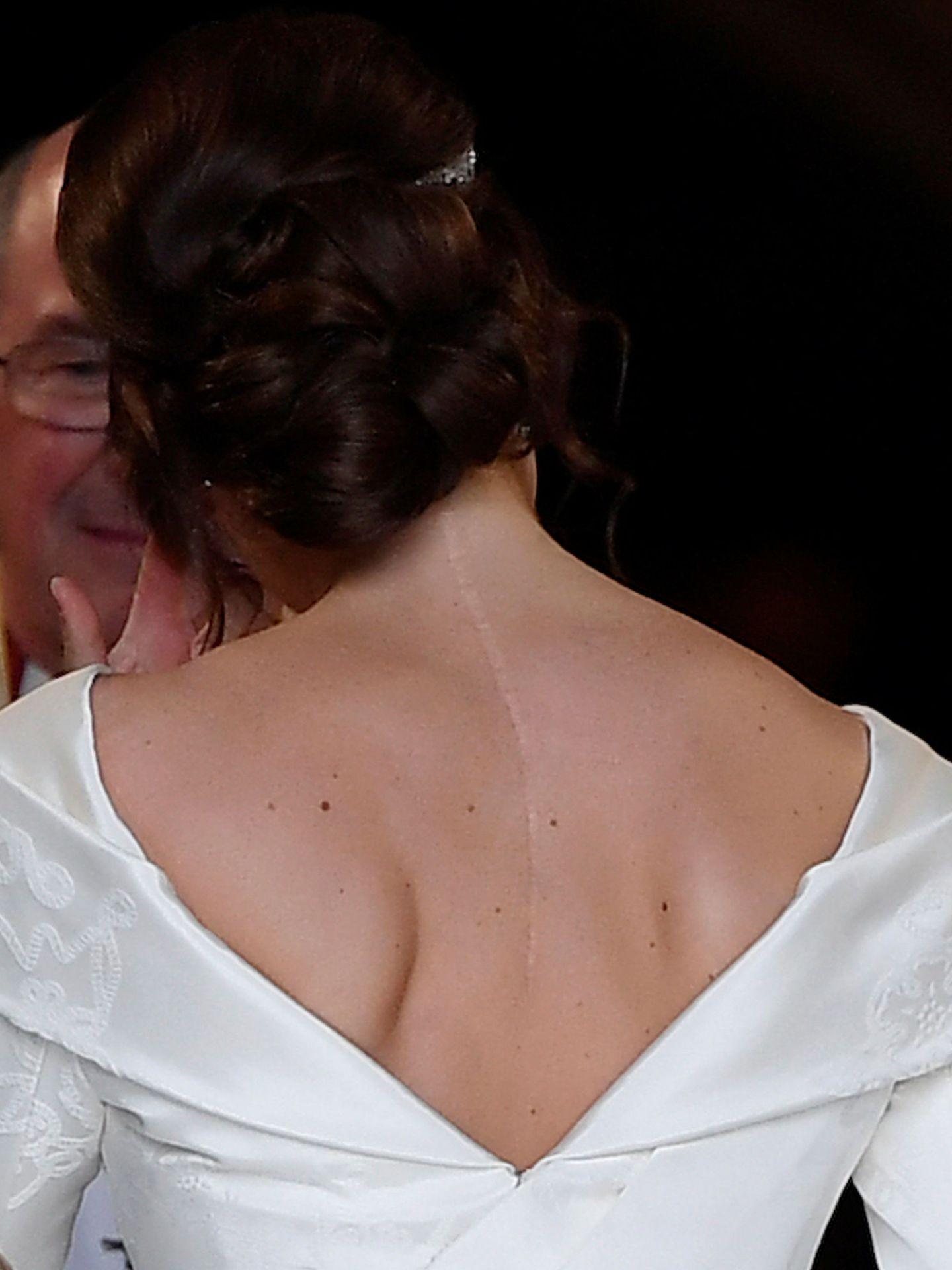 La cicatriz de Eugenia. (Reuters)