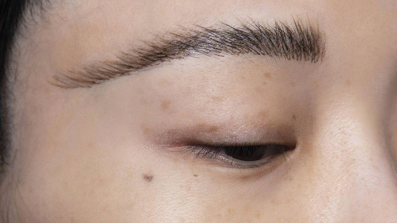 Antes de tratar las manchas, es recomendable acudir a un dermatólogo que valore el tratamiento más indicado. (Imaxtree)