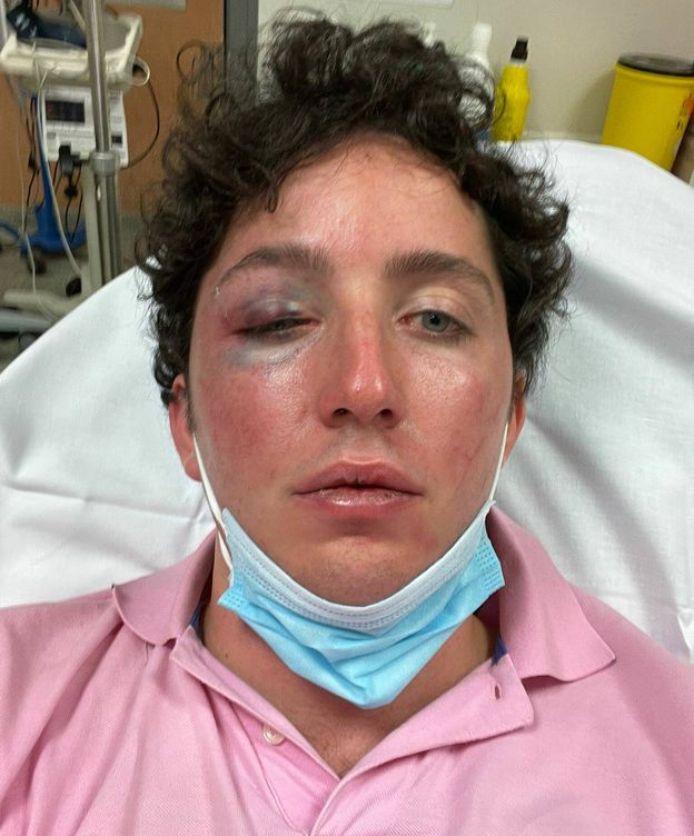 Foto: Francisco Nicolás, ingresado en el Hospital Costa del Sol de Marbella. (EC)