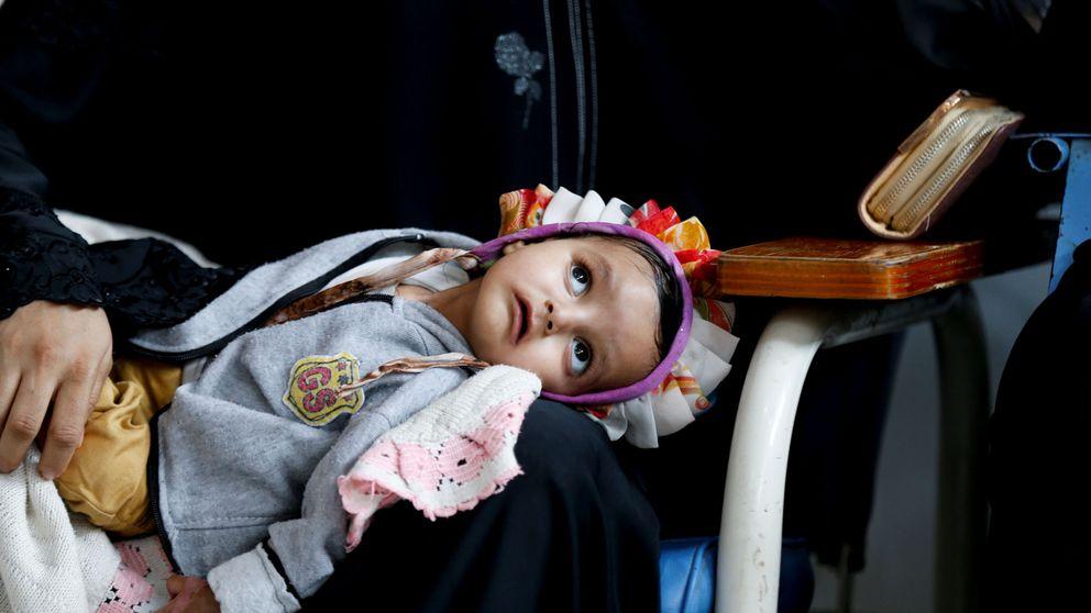 Las otras víctimas de la guerra de Yemen