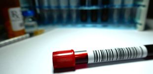 Post de Qué es el linfoma de Hodgkin: síntomas y causas